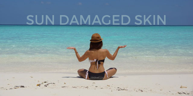 sun damage tips and treatement